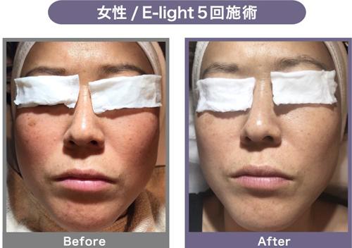 施術実例4・女性・E-light・5回施術